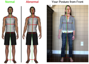 postural screenings